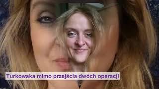Koszmarny wypadek: szpada w głowie polskiej aktorki. Wciąż walczy o życie