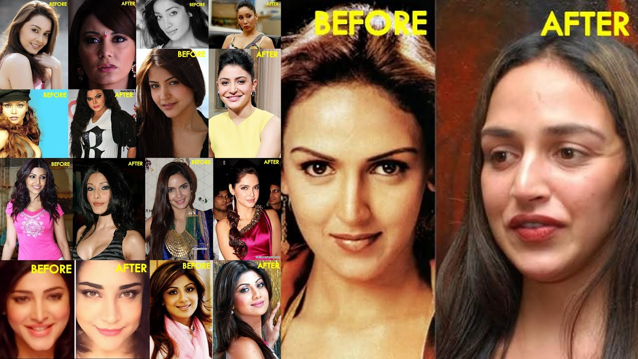 plastic surgery disasters of bollywood celebrities - youtube