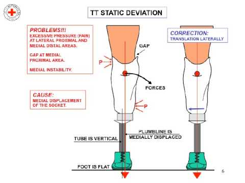 Lower Limb Prosthetic Introduction - Physiopedia