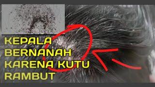 Ngeri Banget! Seekor Belatung Hidup di Dalam Kulit Kepala Pria Ini | IDNtv NOW.