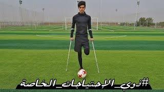 أقدر ألعب كرة قدم برجل وحدة!؟ | #ذوي_الإحتياجات_الخاصة