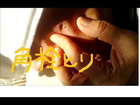 黒 ニキビ 動画