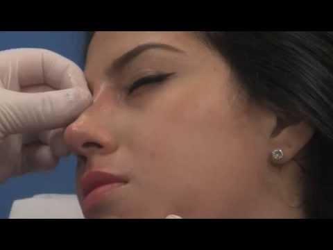 Non Surgical Nose Job for NJ patient