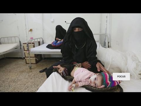 Le Yemen s'enfonce dans la crise humanitaire