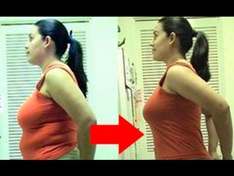 Tanto sobrepeso y obesidad dr salomon sellam adelgazamiento, aumento peso