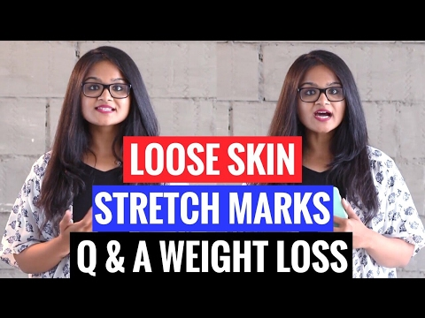 FAQ| WEIGHT LOSS QUESTIONS | Loose skin | Stretch Marks | How to Lose Belly Fat | Sharp Jawline