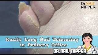 Really Long Nail Trimming in Podiatry Office