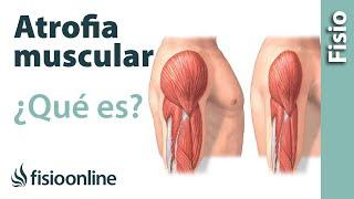 Neurológicas muscular enfermedades que causan debilidad