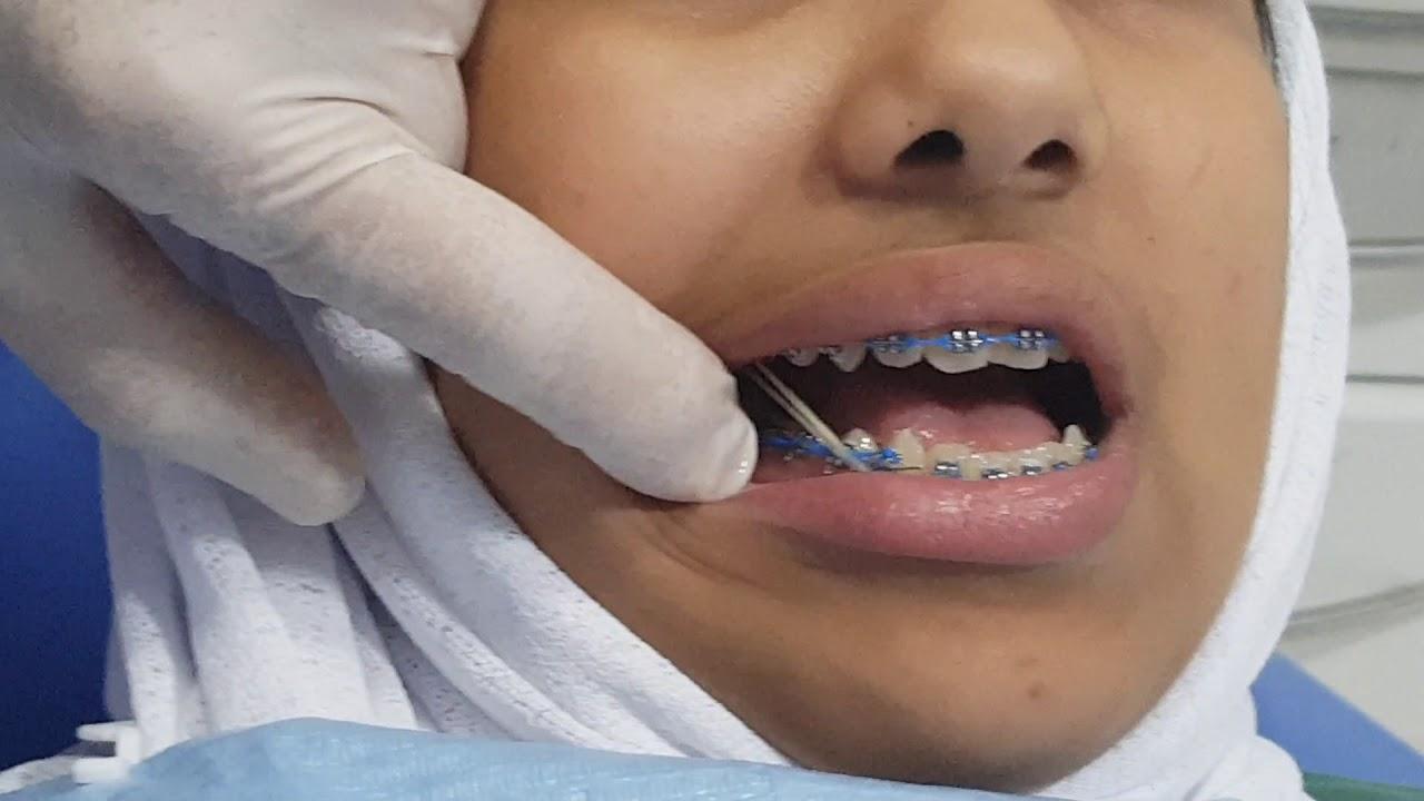 مطاط تقويم الاسنان الصنف الثالث Cclass3 Ortho Elastics Youtube