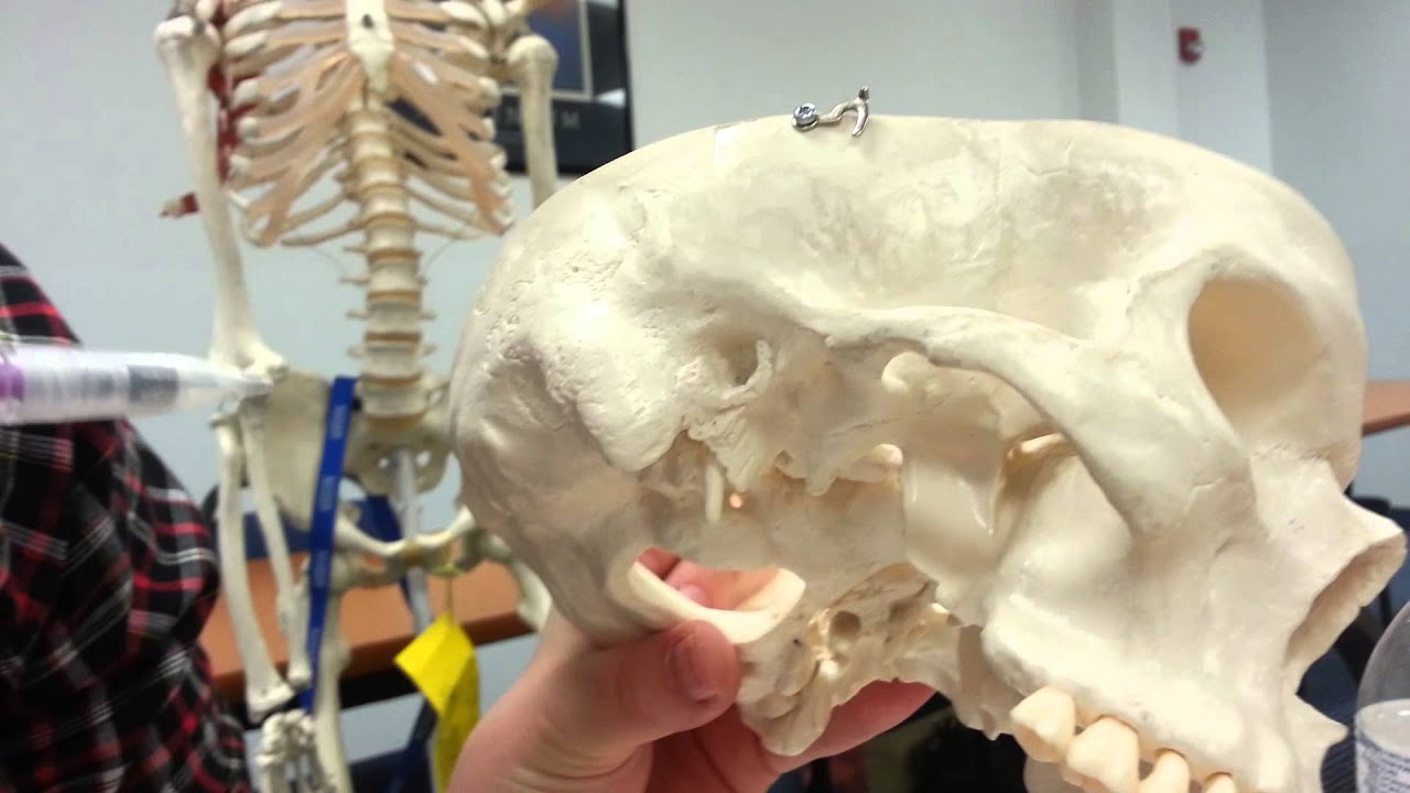 Cranial Bones - Dr Moore - Keiser University - Anatomy - YouTube