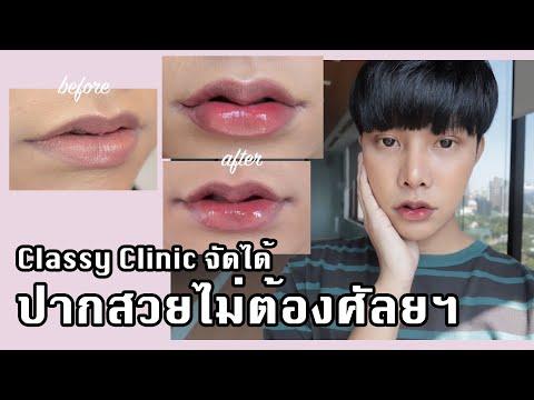 Vlog # ปากกระจับไม่ต้องศัลยฯ Classy Clinic หมอจูนจัดให้ได้ #classylips #ปากกระจับ