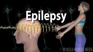 Epilepsy in schools: what can an absence seizure look like?.