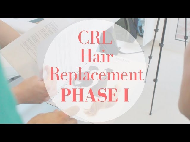 Hair Replacement System - Part I: Measurement session