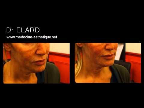 restauration de l 39 ovale du visage et comblement des joues creuses youtube. Black Bedroom Furniture Sets. Home Design Ideas