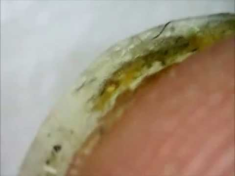 Cleaning dirty fingernails under a microscope (Gross! Nasty!)