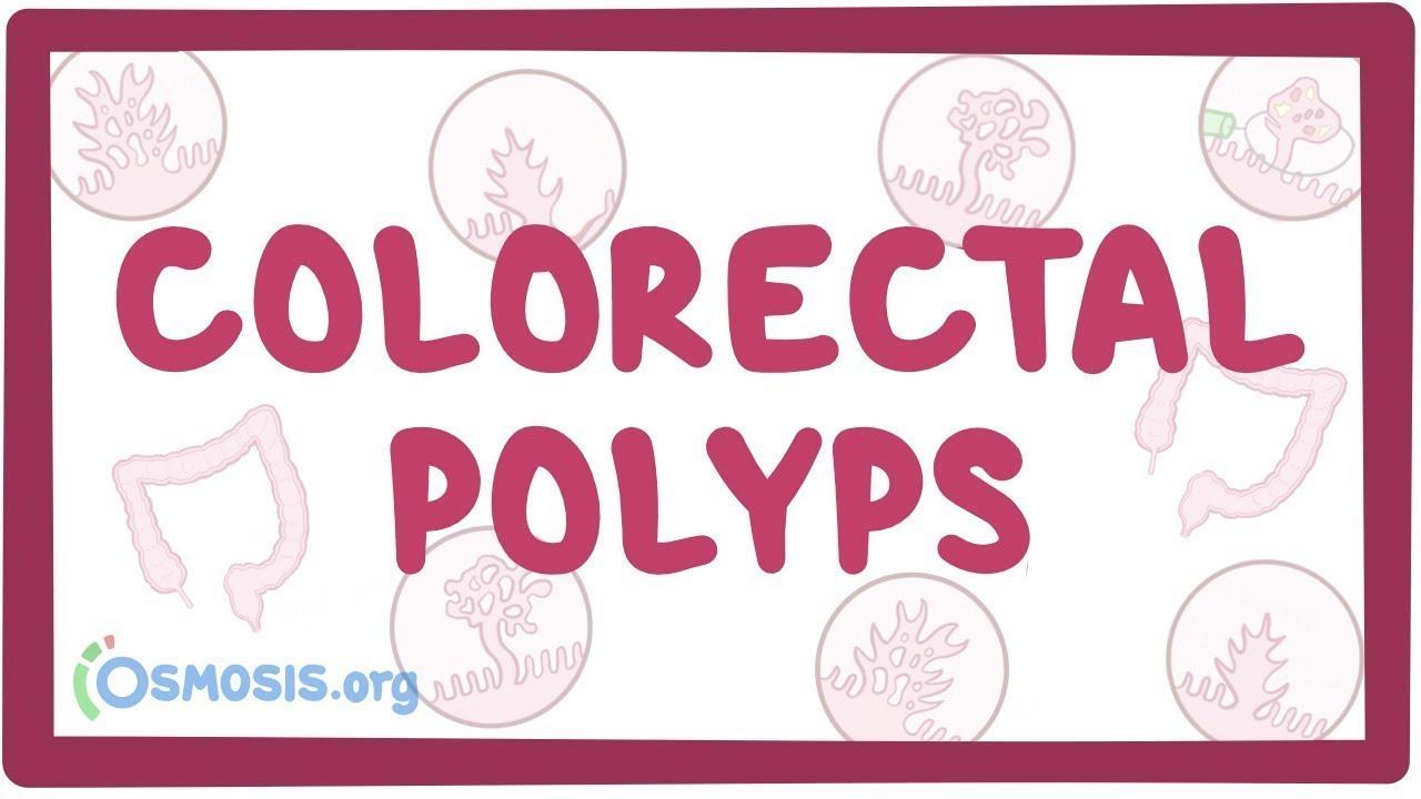 colorectal cancer osmosis)