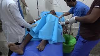 إصابة مواطن برصاص مليشيات الحوثي في مدينة التحيتا جنوب الحديدة
