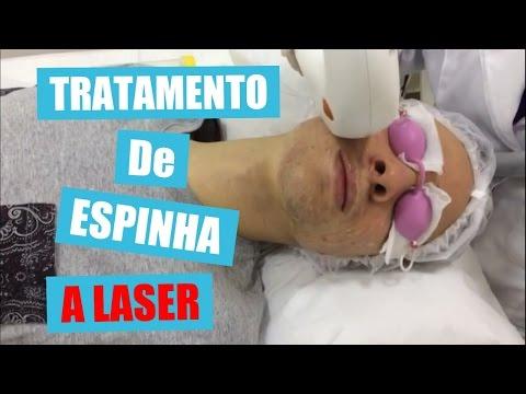 TRATAMENTO DE ESPINHA A LASER/ACNE LUX - COMO SE LIVRAR DAS ESPINHAS