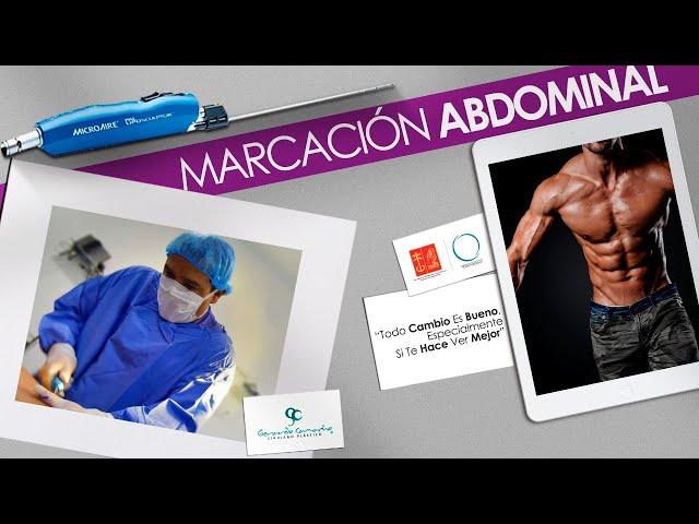 Lipomarcación Masculina  - Lipolisis Alta  Definición Hombres   Bogotá - Colombia