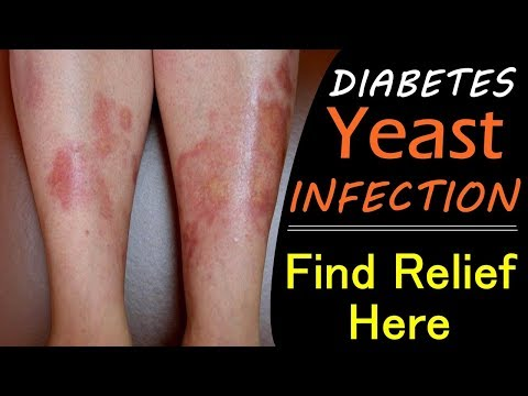 diabetic-yeast-infection-home-remedies---get-relief-at-home-starting-today!