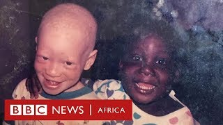 39I have albinism my twin does not39 The family rejecting superstitious beliefs - BBC Africa