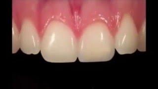Восстановление передних зубов (видео реставрации переднего резца)