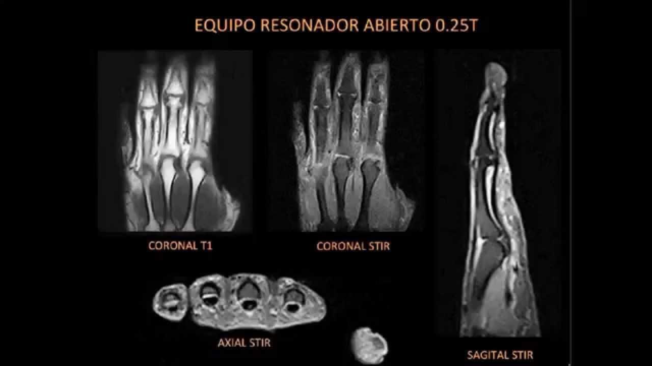Patología de mano y muñeca utilidad de la RM y Ecografía | Segundo ...