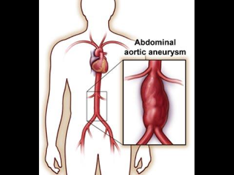 Abdominal Aortic Aneurysm (AAA) - YouTube