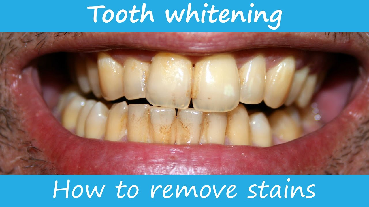 How To Remove Stains From The Teeth You