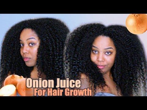 Onion Juice For Hair Growth | Natural Hair | Melissa Denise