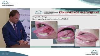 Определение прогноза эффективности лечения плоскоклеточного рака полости рта и глотки