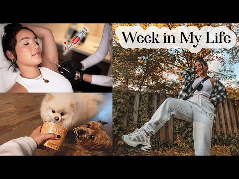 i-finally-got-botox...-(week-in-my-life-vlog)