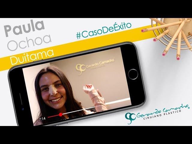 Testimonios de Rinoplastia Cirugía Plástica Facial  Bogotá  Bogotá - Colombia