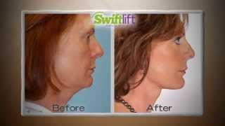 Seattle SwiftLift: Face Lift Procedure by Dr. Craig Jonov, The Gallery of Cosmetic Surgery Thumbnail