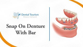 Snap On Denture With Bar - Dental Tourism Mexico