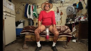 Man with 'world's largest p enis' is registered disabled