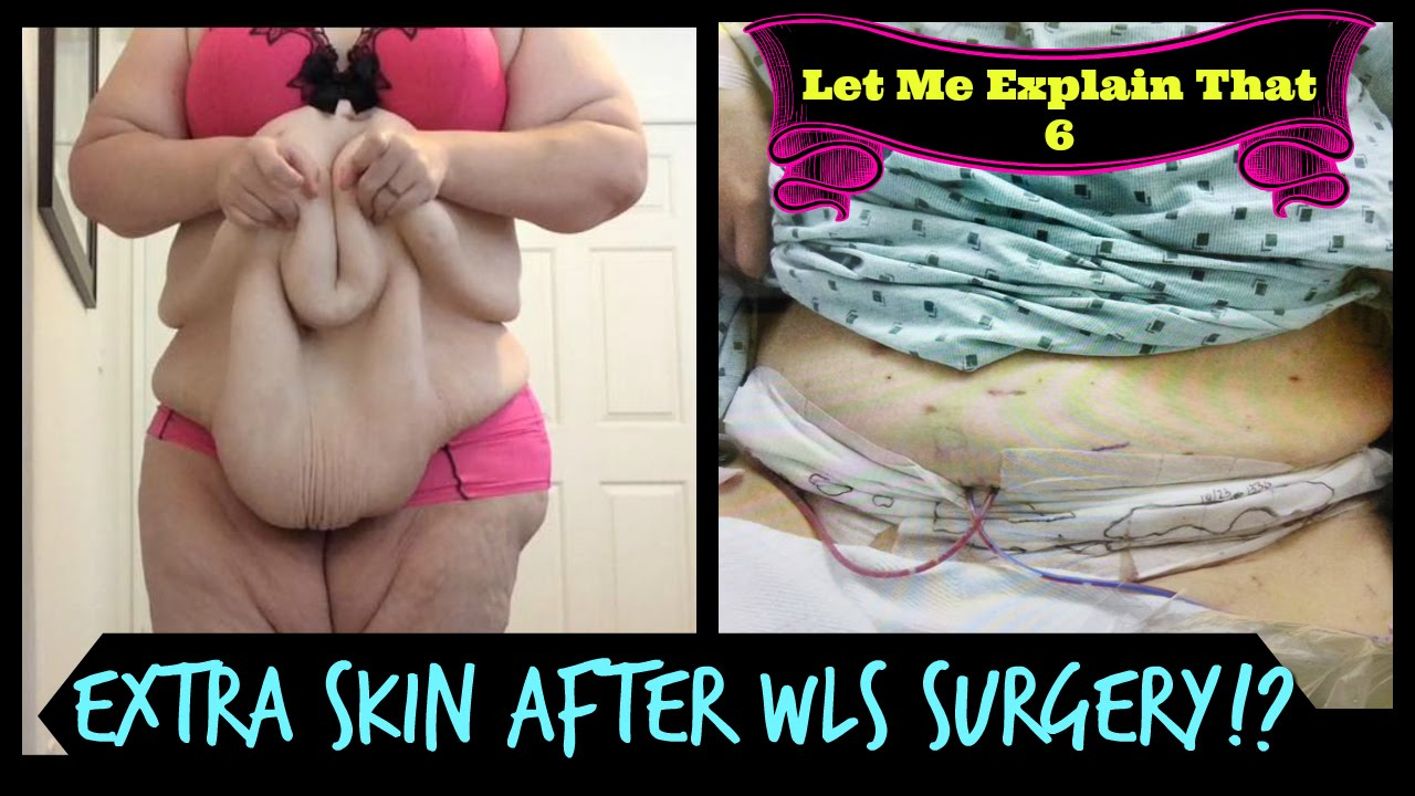 Graphic Extra Skin After Weight Loss Surgery Let Me Explain That