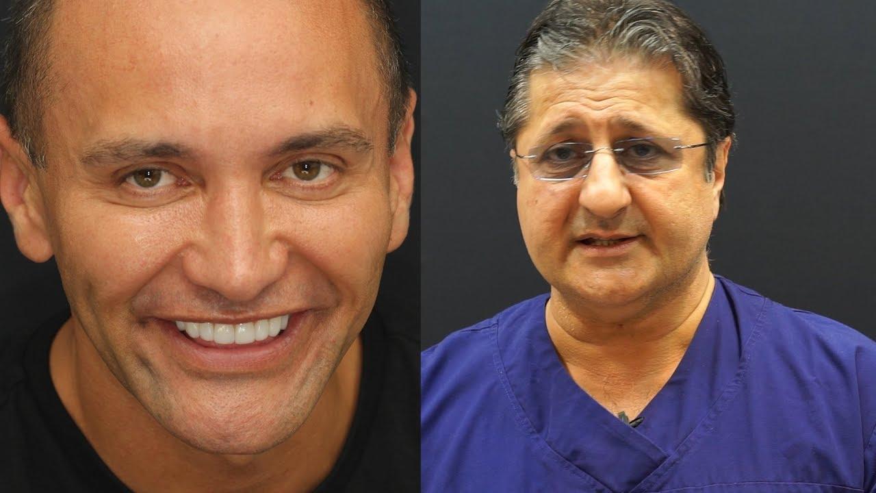 Fixing Sunken Teeth Without Braces Specialist Dentist