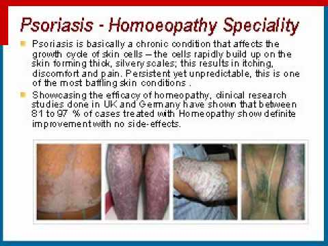 What are the Islamic treatments for psoriasis 1
