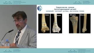 Современные тенденции в хирургическом лечении метастазов рака в кости(Валерий Вячеславович Тепляков (Москва) Саркомы II-ой Петербургский онкологический форум