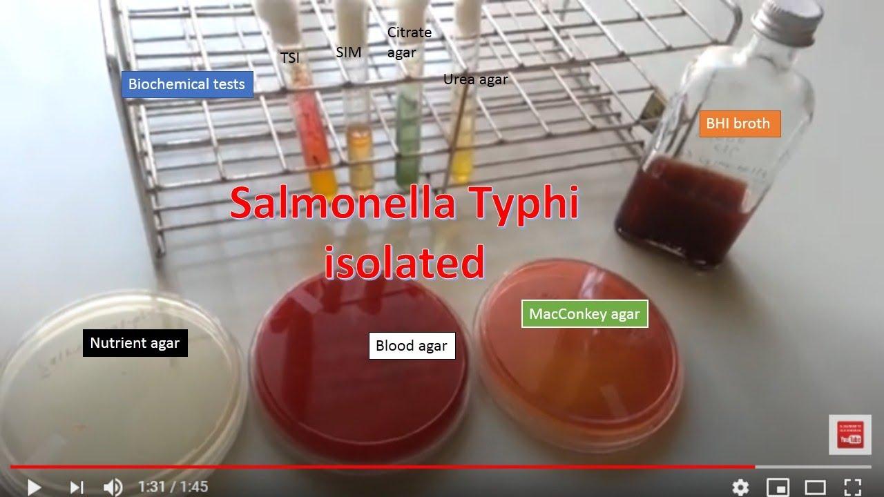 Az enterobacteriaceae spp kenetek férfiakban