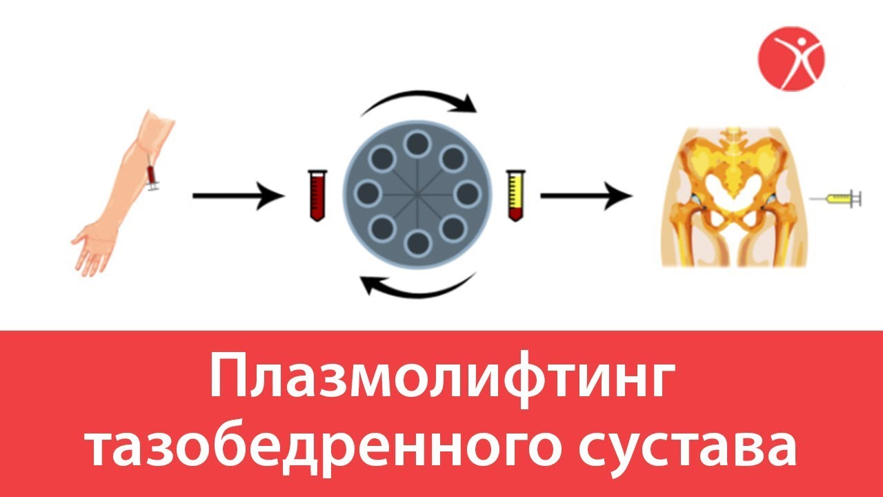 Плазмолифтинг при коксартрозе