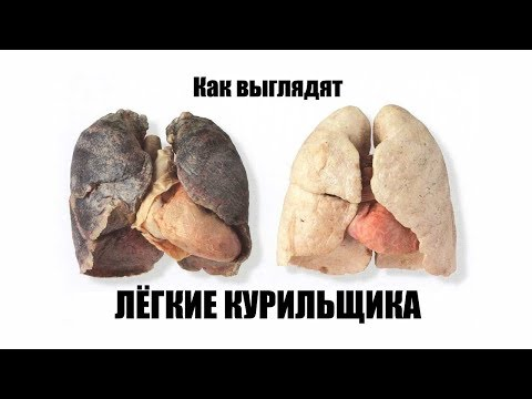 Как выглядят лёгкие курильщика