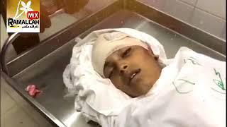 شاهد: الشهيد الطفل ياسر ابو النجا(13) عاماً ارتقى برصاص قناصة الاحتلال بالرأس شرق خانيونس، اليوم