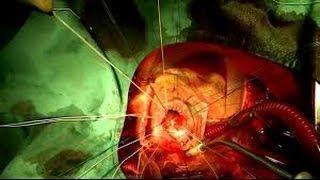 США 1068: Может ли американец накопить на операцию по замене протеза митрального клапана сердца