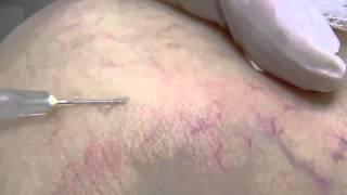 Chích xơ tĩnh mạch (Sclerotherapy)  - Điều Trị Giãn Tĩnh Mạch