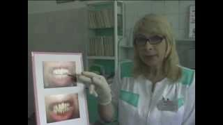 Whitening and teeth preservation with a Curaprox toothbrush