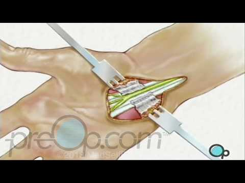 Carpal Tunnel Surgery, Who Is A Candidate?.