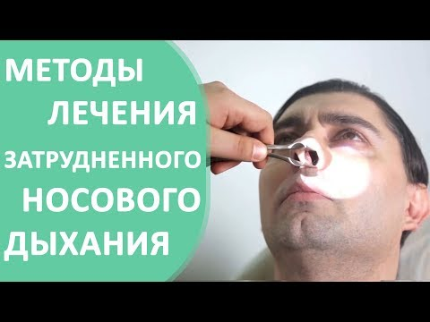 Затрудненное дыхание. 😰 Причины и способы лечения затрудненного носового дыхания.