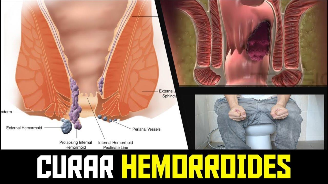 Como CURAR las HEMORROIDES Naturalmente y Rápido